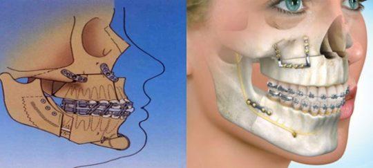 جراحی اصلاحی فک در درمان ارتودنسی