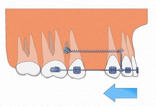 مینی ایمپلنت در درمان ارتودنسی